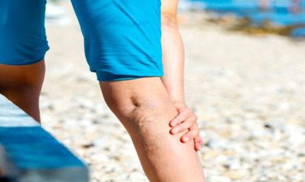 Как избавится от варикоза на ногах