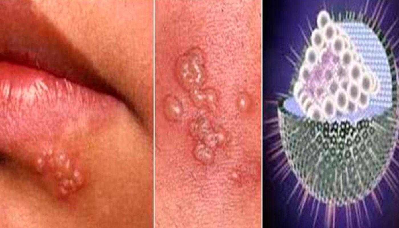 Как вылечить герпес на губах: описание, фото