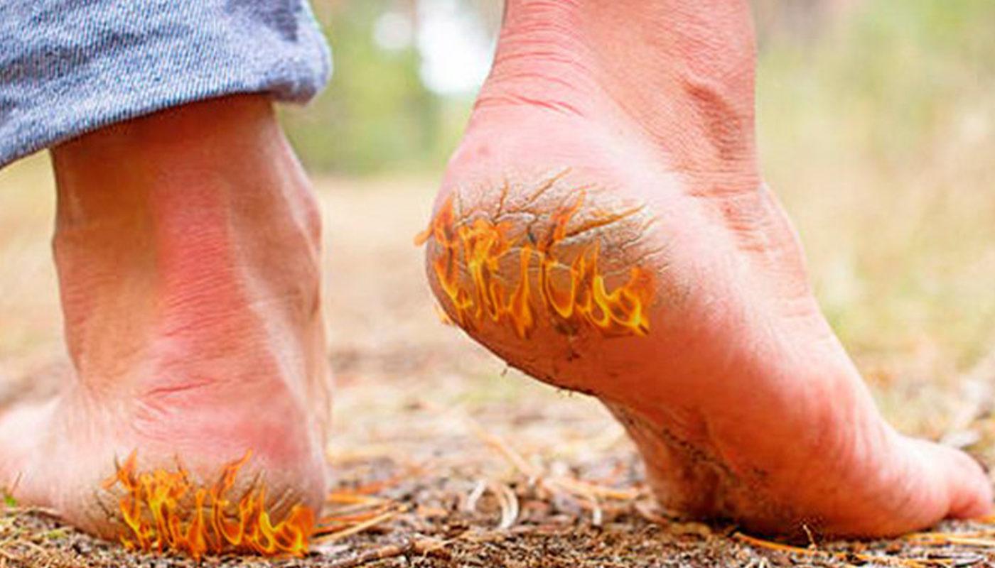Трещины на пятках | Эффективные способы лечения в домашних условиях