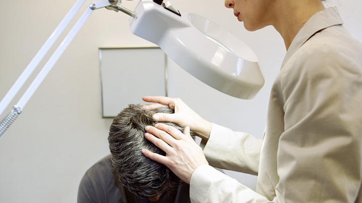 Лечение алопеции