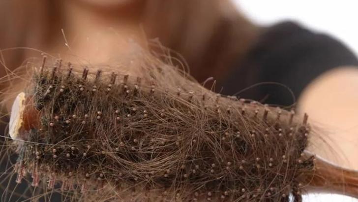 Почему выпадают волосы после коронавируса