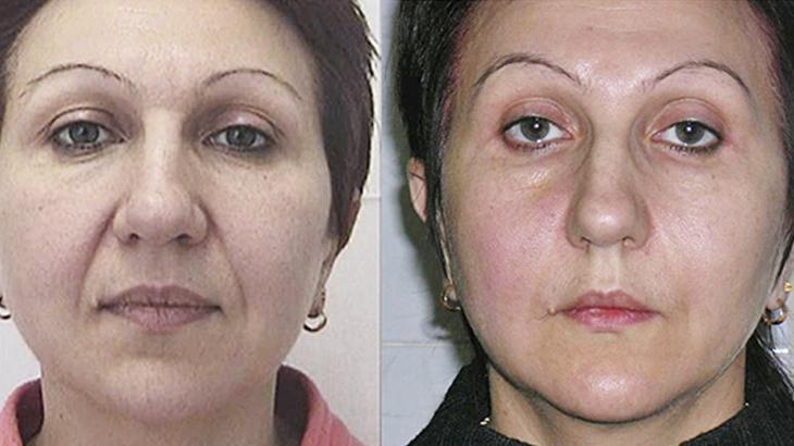 Лифтинг-нити для подтяжки лица, фото до и после избавление от носогубок