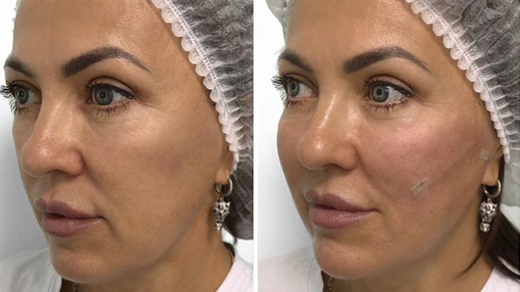Отзывы о нитяном лифтинге лица, фото до и после